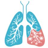 ビタミンDで肺がん予防