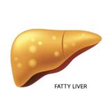 ビタミンDと脂肪肝