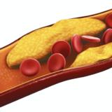 ビタミンDと動脈硬化症