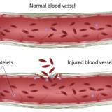 ビタミンDが血管内皮を守る